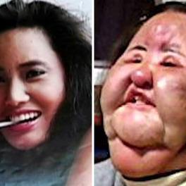 Tragiczne efekty operacji plastycznych
