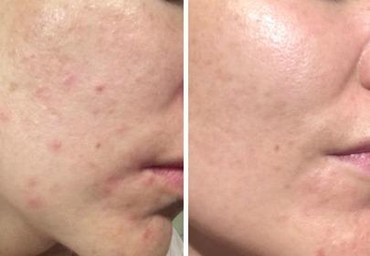 trądzik zdjęcie przed i po