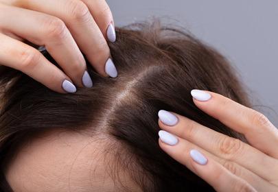 Skąd bierze się swędzenie skóry głowy?