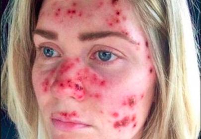 kobieta z rakiem skóry