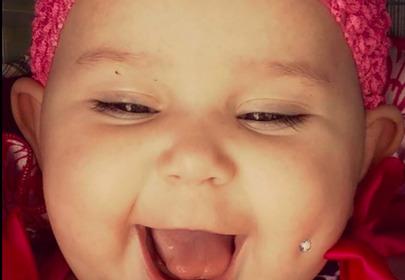 półroczne dziecko z kolczykiem w policzku