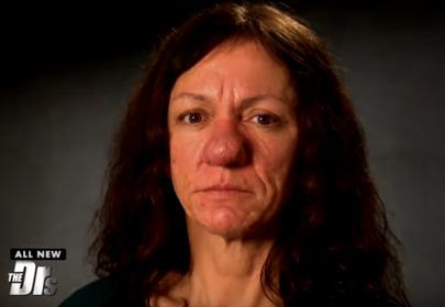 Kobieta z przerośniętym, guzowatym nosem przed zabiegiem chirurgicznym
