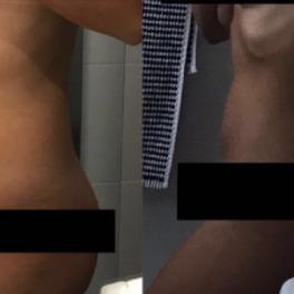 brzuch blogerki chorującej na endometriozę