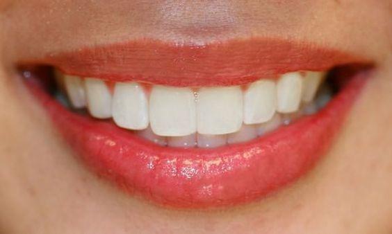 Masz na zębach przebarwienia od kawy? TO pomoże ci się ich skutecznie pozbyć!
