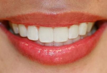 Zbliżenie na uśmiech z widocznymi białymi zębami