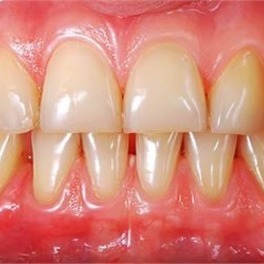 Starte żółte zęby