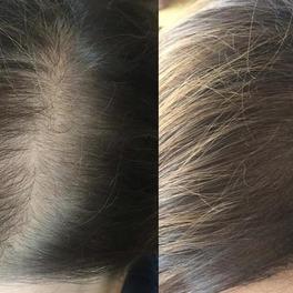 jak zakryć prześwitującą skórą na głowie przy rzadkich włosach - efekt przed i po