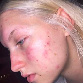 blogerka z trądzikiem na twarzy