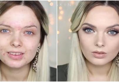 Jak zakryć trądzik makijażem