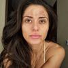 Dziewczyna z hiperpigmentacją bez makijażu
