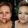 kamuflaż krwiaka za pomocą makijażu