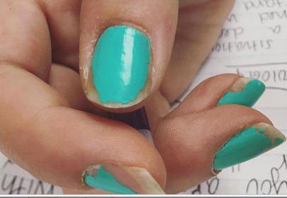 odpryskujący lakier do paznokci