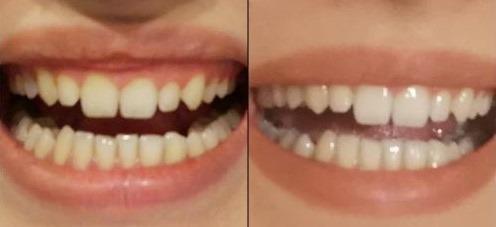 Efekty przed i po stosowaniu pasty wybielającej WhiteOn