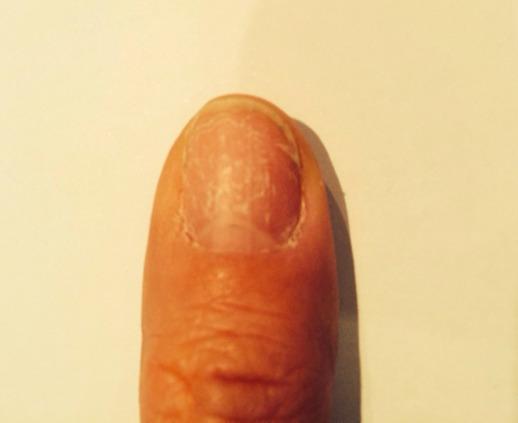 paznokieć zniszczony po hybrydzie