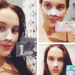 Dziewczyna z plastrami oczyszczającymi na nosie