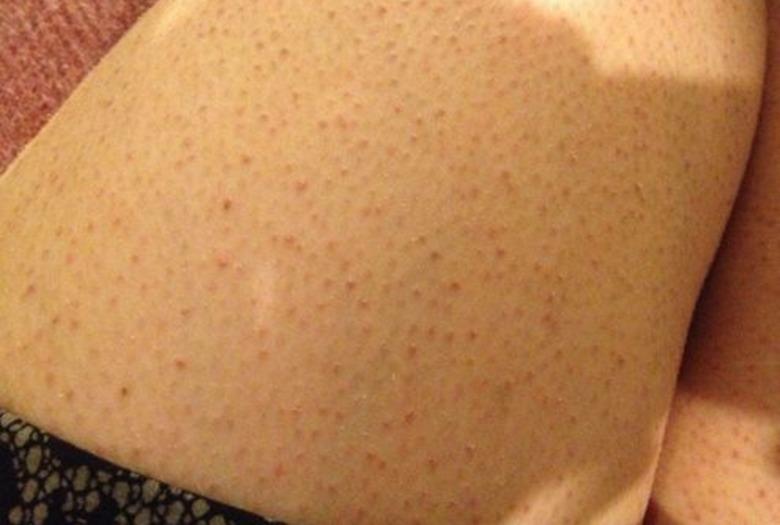 podrażnienia skóry po goleniu