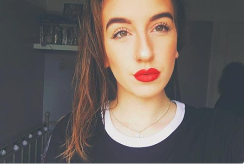Alice Weeks - dziewczyna z łuszczycą