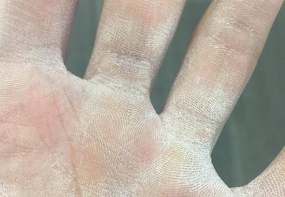 suche dłonie