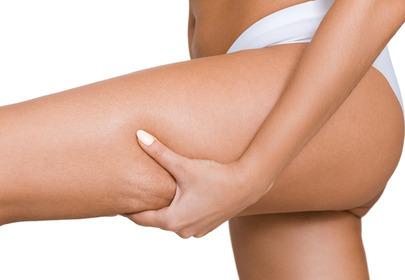 cellulit przyczyny rodzaje zabiegi domowe sposoby