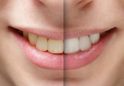 wybielanie zębów - efekty przed i po