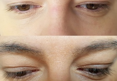 Rzęsy kobiety w dużym zbliżeniu przed i po zastosowaniu serum Biotebal rzęsy XXL