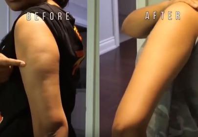 Ręka przed i po zastosowaniu body wrapingu z miodem, wodorowęglanem sodu, kawą i algami