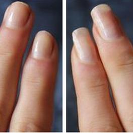 paznokcie przed i po przyspieszony porost dzięki odżywcze