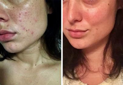 metamorfoza skóry przed i po
