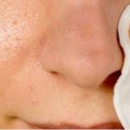 zdjęcie nosa z zaskórnikami oraz płatkiem kosmetycznym
