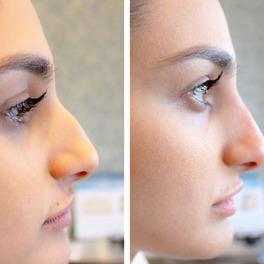 korekta nosa wypełniaczem zdjęcia przed i po
