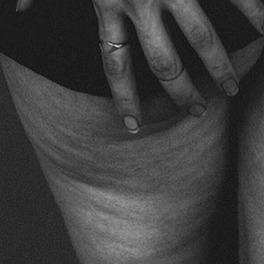 czarno-białe zdjęcie pośladków i ud z cellulitem