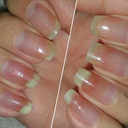 Zaczerwienione palce ze zniszczonymi paznokciami