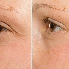krem chuda skincare rezultaty przed i po kobiece oko i zmarszczki mimiczne