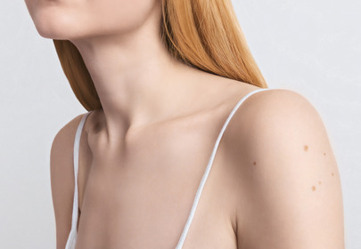 pieprzyki przyczyny powstawanie zapobieganie rak skóry