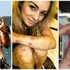 Chora na łuszczycę Giorgia Lanuzza