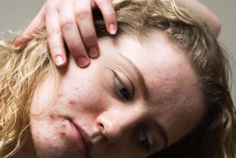 twarz z tradzikiem, portret w projekcie epidermis