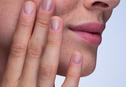 skóra przetłuszczająca się