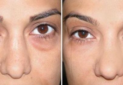 Zdjęcie cieni pod oczami przed i po zastosowaniu maseczki z sody oczyszczonej