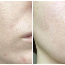 zdjęcia twarzy przed i po stosowaniu peelingu progresywnego Lancôme Visionnaire Crescendo