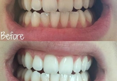wybielone zęby zdjęcie przed i po