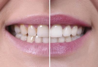 bielsze zęby z philips