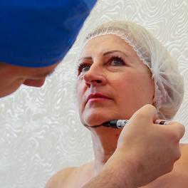 Zabieg liposukcji brody