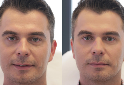 Efekty botoks kwas hialuronowy